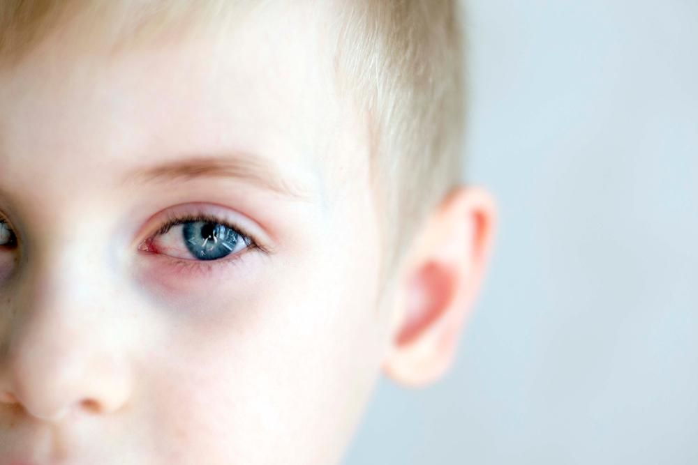 မျက်စိအတွက် သင်ပြုလုပ်တတ်သည့် အဆိုးရွားဆုံးအမှားနှင့် မျက်စိအမြင်အာရုံ ပျက်စီးစေနိုင်သော သင်၏ နေ့စဉ် အပြုအမူများ